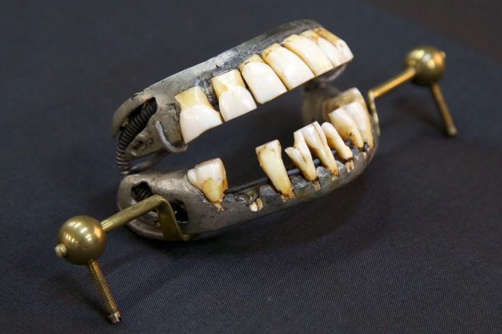 dentures-7-3-2013-shenk-157